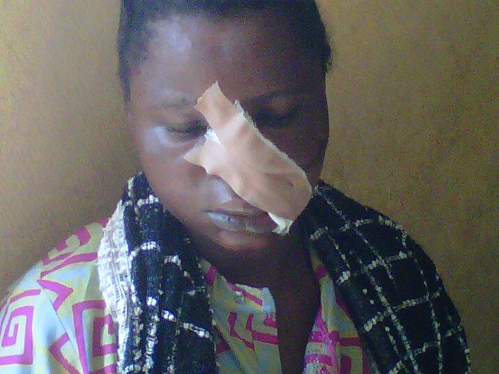 adedoyin-adeniyi-who-was-injured-by-her-zainab-fatai